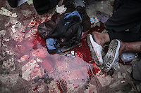 In this Saturday, Jul. 27, 2013 photo, a puddle of blood is seen over the floor of a field hospital in the  Rabaa Al-Alawya mosque in the Nasr City neigbourhood of Cairo. (Photo/Narciso Contreras).