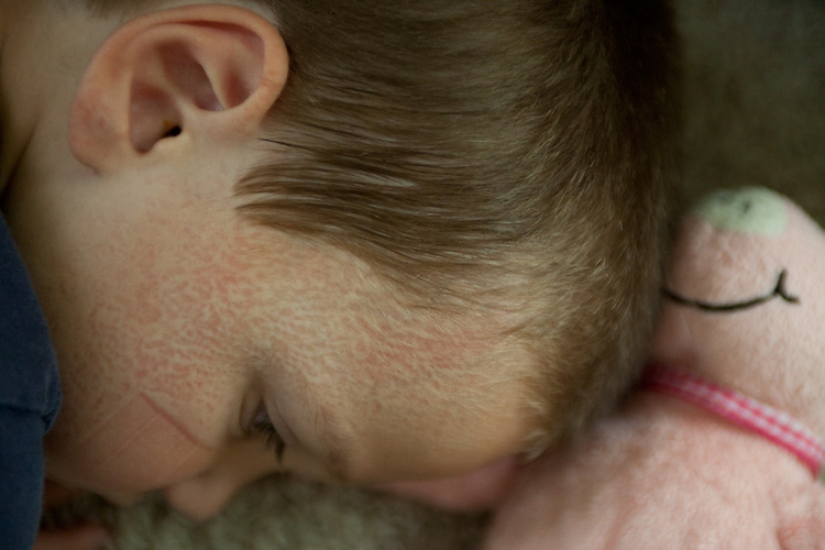 My younger son has a carpet imprint on his face after waking up from an impromptu nap.