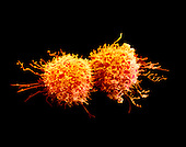 Cancer cells dividing. SEM X4500