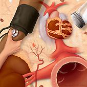 Conceptual biomedical illustration of high blood pressure or hypertension