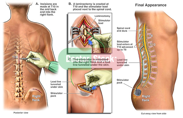 This full color medical exhibit illustrates the placement of a spinal cord stimulator into the thoracic spine at the at the T10 level. The back incision is shown with the subsequent laminectomy and placement of the stimulator lead. A stimulator pack is shown placed in the flank incision and connected to the lead.