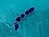 Pneumonia Streptococcus pnemoniae.  SEM.