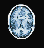 Horizontal sectional MRI (magnetic resonance image) of the human brain taken on a level with the interventricular foramen. The brain contains more than 300 billion neurons and is composed mainly of gray matter which originates and processes nerve impulses and white matter which transmits the impulses.