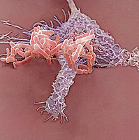 Pseudomonas Bacteria being ingested by a macrophage. SEM.