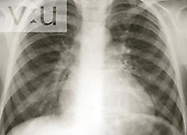 Chest X-Ray TB