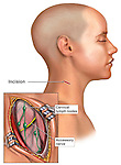 This medical illustration shows a superficial lymph node biopsy in the neck. These tests sometimes occur when cancer is suspected.