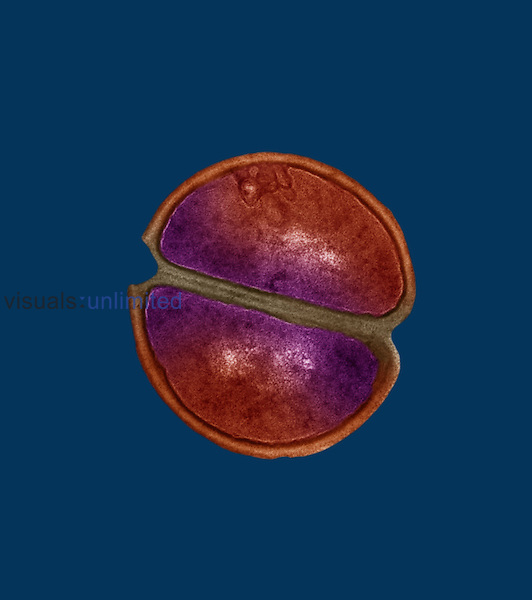 (Staphylococcus epidermidis) Bacteria. S. epidermidis is a part of the normal flora in the intestines, skin, and upper respiratory tract but it is also an opportunistic bacteria and will take advantage of a wound, opening in the skin with an IV or catheter, heart valve, or prostheses. The incidence of infection of Staphylococcus epidermidis is on the rise.  TEM X104,400