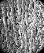 "The back wall of the lacuna with small canalicular openings and the pattern of crystal formation on the inner surface of an Haversian canal. The view shows the orientation of collagen fibers in the innermost lamella of the Haversian system.  SEM X7100  3.5"" X 4.5""  **On Page Credit Required**"