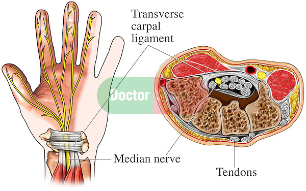 This medical exhibit accurately depicts the anatomy of the carpal tunnel as seen from palmar and cross-sectional views. Labeled structures include the transverse carpal ligament, median nerve and tendons.
