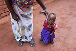 Maria (1) from Mzuzu, Malawi, suffers from Down syndrome and a heart condition. Her mother Funy is teaching her how to walk. <br /> <br /> &copy; Guido Dingemans (2014). Licensed by HospitaalBroeders/Saint John of God Hospitaller Services.