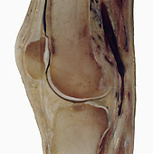 Vertical section through the human knee, showing the patella, end of the femur, and top of the tibia.