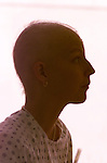 Hope Kingston a San Francisco general hospital cancer patient lost her hair during from chemo therapy.