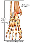 Fractured (Broken) Foot Bone and Dislocated Ankle Joint. This medical illustration pictures a single anterior view of the bones of the right lower leg, ankle and foot. Clearly identified with labels are a dislocation of the ankle (talus) and a fracture of the fifth metatarsal bone of the foot.