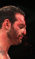 SYDNEY, AUSTRALIA - AUGUST 26:  Andrew Profilli of Australia bleeds from the head during his 93kg bout against Priscus Fogagnolo of Australia during CFC 18 at Luna Park on August 26, 2011 in Sydney, Australia.  (Photo by Marianna Massey/Marianna Massey/Corbis)