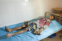 Rare Tree man syndrome patient founds in Bangladesh