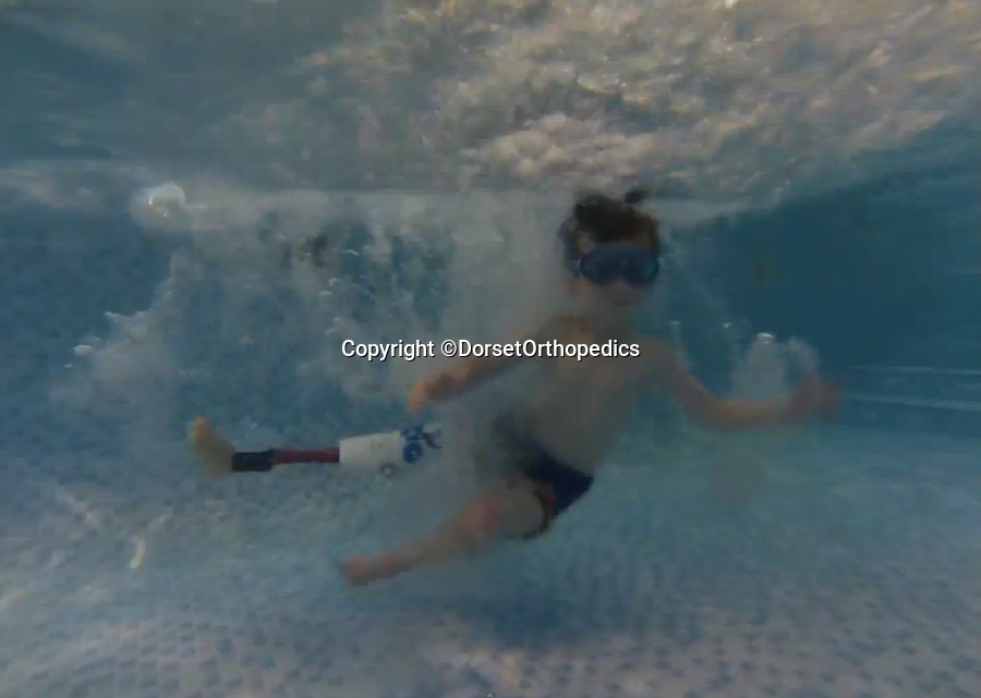 BNPS.co.uk (01202 558833)<br /> Pic: DorsetOrthopedics/BNPS<br /> <br /> ***Please Use Full Byline***<br /> <br /> Rio Woolf with his new leg that allows him to swim. <br /> <br /> <br /> This is the heartwarming moment a disabled boy was able to swim with a prosthetic leg for the first time.<br /> <br /> Rio Woolf, aged six, had his lower right leg amputated when he was 14-months-old after being born without a tibia, knee, or ankle joint.<br /> <br /> The plucky youngster learnt to walk with NHS limbs and now uses a carbon blade, but has been removing it for swimming.<br /> <br /> He normally take it off in the changing rooms and gets carried to the pool or uses a wheelchair.<br /> <br /> But Rio has now received a state-of-the-art waterproof limb that means he can jump into the water like any other child his age.<br /> <br /> The prosthesis has also improved his lower body balance which has made his back stroke much faster.<br /> <br /> He has also worn it on holiday to France with his mum Juliette and dad Trevor, both 48, and enjoyed going on the beach and in the sea.<br /> <br /> The new leg was created by a leading prosthetics clinic who used an Ossur Junior Vari Flex-Foot with it, so Rio can also wear a shoe.<br /> <br /> It cost around 5,000 pounds and will need to be replaced as Rio grows.