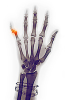 Colorized x-ray of a woman's hand showing a dislocation of the little finger at the distal interphalangeal joint