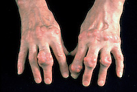 Gout is a hereditary metabolic disorder characterised by recurrent acute arthritis, hyperuricemia and deposition of sodium urate in and around the joints, sometimes with formation of uric acid calculi. The term tophaceous refers to the presence of abnormal stones of mineral salts, called tophi.