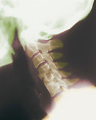 X-ray of the normal human cervical spine, lateral neck view. The cervical spine is more flexible than the thoracic or lumbar regions. The 24 vertebrae of the spinal column protect the inner spinal cord.