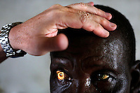A man has his eyes examined by ophthalmologist Doctor Richard Hardi in the remote village of Pania. <br /> <br /> From his base in Mbuji Mayi Hungarian ophthalmologist Friar Richard Hardi and his team travelled deep into the Congolese rainforest, by 4x4 and canoe, to treat people in isolated communities most of whom have never seen an ophthalmologist. At a small village called Pania they established a temporary field hospital and over the next three days made hundreds of consultations. Although both conditions are preventable, many of the patients they saw had Glaucoma or River Blindness (onchocerciasis) that had permanently damaged their eyesight. However, patients with cataracts, a clouding of the eye's lens, who were suitable for treatment were booked for an operation. For two days the team carried out the ten minute procedure on one patient after another. The surgery involves making a 2.2mm incision into the remove the damaged lens that is then replaced by an artificial one. Doctor Hardi is one of the few people willing to make such a journey but is inspired to do so by his faith and, as he says: 'Here I feel that I can really make a difference in people's lives'. /Felix Features