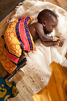 Oryem Innocent ,14 months, is a  malaria patient in Madi Opei clinic in Uganda. The childs mother is sHIV positive and still breastfeeding. HIV positive mothers often continue beyond the recommended period breastfeeding because of poverty or because a failure to do so would alert other villagers to  thier HIV status resulting in  stigmatization.