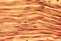 Smooth muscle fibers. LM X185.