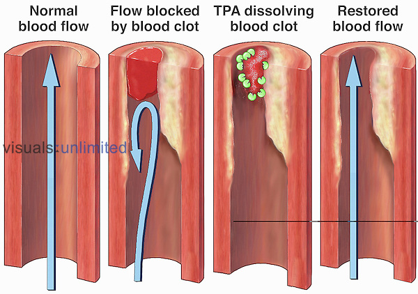 Medical illustration of normal blood flow within a vessel, a blood vessel blocked by a blood clot, and of Tissue Plasminogen Activator (TPA) dissolving the blood clot and restoring normal blood flow in the artery.