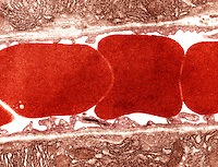 Red blood cells ,erythrocytes, in a blood vessel.  TEM X42,000