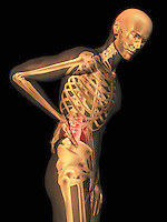 Biomedical illustration showing a person suffering from lower back pain