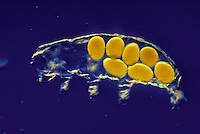 Molted Water Bear or Tardigrade leaving an egg mass in the old exoskeleton (Milnesium tardigradum). LM