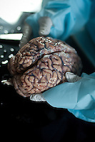 8/5/10 12:38:29 PM -- Boston , Massachusetts..Interview with Dr. Ann McKee.& Working Shots at Brain Bank.Photo by Vernon Doucette  for Boston University Photography
