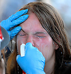 A protester who was pepper sprayed in the face by police is treated by a medic on September 4, 2008 during the last day of the 2008 Republican National Convention in St. Paul, Minnesota. <br /> <br /> Later that evening police chased hundreds of protesters in the streets before gassing them with tear gas and exploding percussion grenades. Hundreds of people were arrested including many journalists.<br /> <br /> Most of the charges were later dropped.
