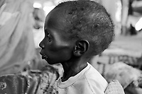 Kalma IDP camp, South Darfur, July 29 2004.Abnalgecem Adam, 20 months old, suffers from severe malnutrition, he weighs only 4.2kg. He is one of 2000 children in the MSF emergency nutrition program in this camp.