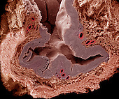 Cross-section through the wall of the vagina showing the lumen, the surrounding mucosal layer, and several adjacent blood vessels.   The wall of the vagina lacks glands but its surface epithelium is kept moist by a lubricating mucus secreted by uterine glands, cervical glands, and the glands of Bartholin. SEM X75  **On Page Credit Required**