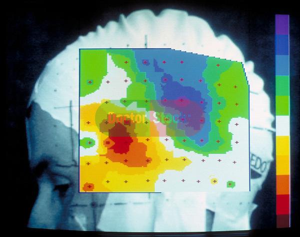 brain scan in neurological study