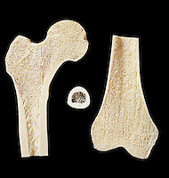 Sections through the upper and lower ends of the femur or upper human leg bone, and a cross-section of the femur shaft. The bone has been sectioned to show the trabeculae that form the internal supportive structure of long bones. Hip fractures most often occur at the neck of the femur, which is the thinner section that sits just outside of the hip joint. In old age, the density of the neck of the femur decreases (osteoporosis) and the hip becomes vulnerable to fracture.