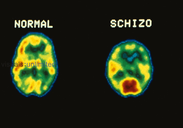Normal and schizophrenic brain PET Scans | Visuals Unlimited