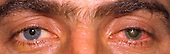 Siderosis or siderosis bulbi, a degenerative eye toxicity caused by iron foreign body in the eye.