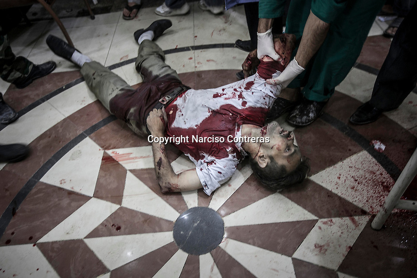 A dead body of Syrian civilian is pulled out from the floor as he arrives to a hospital after was killed by mortar shelling in Hananu district at the northeast of Aleppo City.
