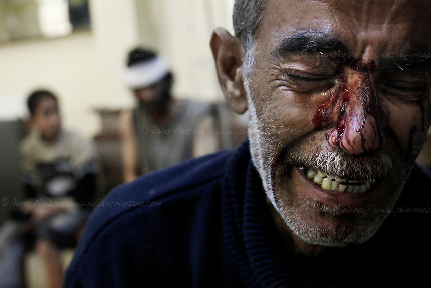 Kamal, the father of an 8-year-old girl who was fatally wounded along with his son Hamed (sitting at left on background), cries while being treated in a local hospital in a rebel-controlled area of Aleppo. The family was wounded by the machine gun of a regime jet at the Karm Al-Aser neighborhood of eastern Aleppo as the skies of this northern city were again filled with the sound of aerial bombing and artillery fire  as combat resumed following a U.N. negotiated truce (which was not respected by either side). Regime snipers inflicted heavy casualties on Free Syria Army forces as both sides launched attacks on each other. ..© Javier Manzano............................