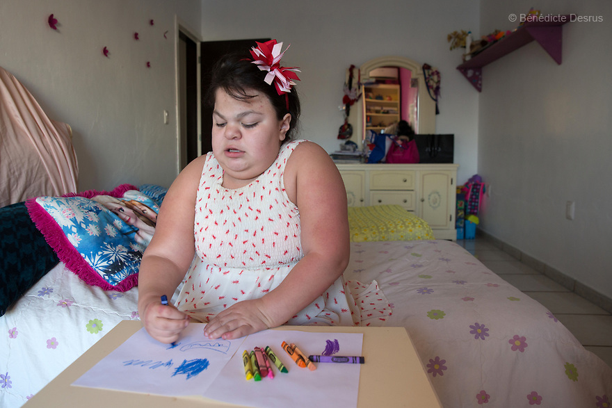 """Ana Ximena Navarro is pictured drawing at her home in Guadalajara, Mexico on February 22, 2017. Ximena was diagnosed as an infant with Hurler syndrome. Hurler syndrome is the most severe form of mucopolysaccharidosis type 1 (MPS1), a rare lysosomal storage disease, characterized by skeletal abnormalities, cognitive impairment, heart disease, respiratory problems, enlarged liver and spleen, characteristic facies and reduced life expectancy. Ximena was being given enzyme replacement therapy (ERT) when she was 19 months old, and she was suddenly able to eat and sleep. She is now 12, and has normal hormonal development for her age, although some mental delay, according to her father. """"Without the treatment, she would have died from all the complications — untreated, children have a very bad quality of life and typically die before they are seven"""", her father says. Photo credit: Bénédicte Desrus"""