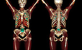 3D CT scans of metastatic bone cancer from a ductal carcinoma of the breast.