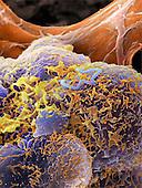 Listeria are gram negative bacilli Bacteria. SEM.