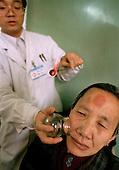 Moxi-suction...Photo taken March 2000