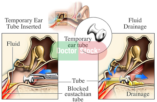 This exhibit compares cut-away views of the middle ear utilizing temporary drainage tubes to treat chronic ear infections. Labels identify the blocked Eustachian tube, fluid, temporary ear tube insertion, and fluid drainage.
