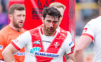 Picture by Allan McKenzie/SWpix.com - 13/05/2017 - Rugby League - Ladbrokes Challenge Cup - Castleford Tigers v St Helens - The Mend A Hose Jungle, Castleford, England - St Helens's Matty Smith cut and wounded during the game against Castleford.