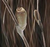 Head Louse eggs (Pediculus humanus capitis) glued on human hairs. SEM