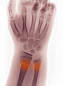 X-ray of a buckle or torus fracture in the wrist of a 9 year old boy