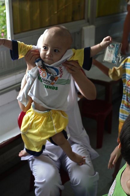 The young disabled child is held by a nurse in the Agent Orange children's ward of Tu Du Hospital in Ho Chi Minh City, Vietnam.  About 500 of the 60,000 children delivered each year at the maternity hospital, Vietnam's largest, are born with deformities, some because of Agent Orange, according to doctors. About 60 of them currently live on the ward, ranging in age from newborns to young people in their 30s. May 1, 2013.