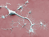 Human pluripotent stem cell differentiating into a neuron. SEM.